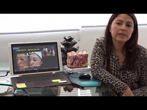 Caso de Yanelú resuelto en DRTV: Tratamiento Láser de Nevus de Ota