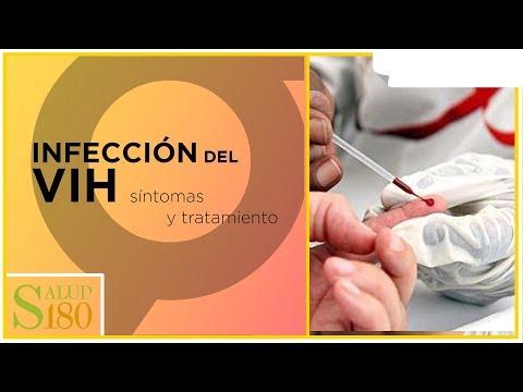 Síntomas de paso hipertensión 1