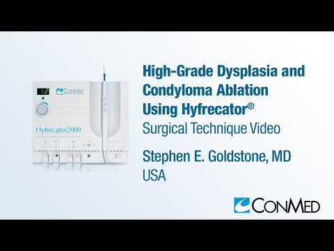 Dr. Stephen Goldstone - High Grade Dysplasia and Condyloma Ablation Using Hyfrecator® - ConMed