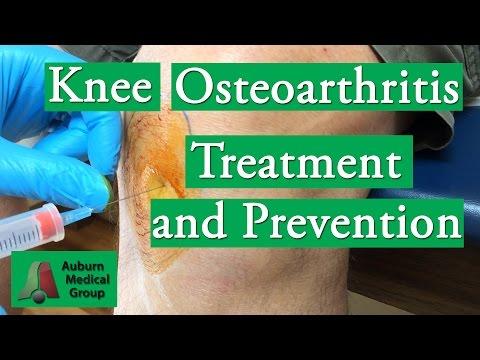 A bal térdízület deformáló artrózisa 1-2 fokkal