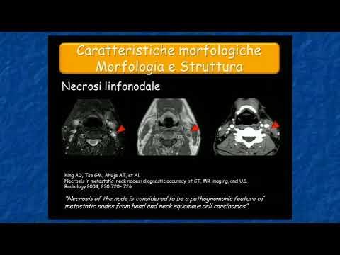 Mal di lato inferiore posteriore destro della colonna vertebrale