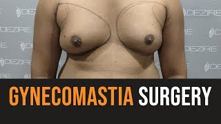Cure Of Gynecomastia | Gynecomastia Surgery Video | Pune | Delhi | Gurgaon | Bengaluru | Ahmadabad |