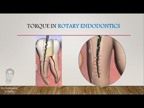 Concept of Torque and Speed in Rotary Endodontics