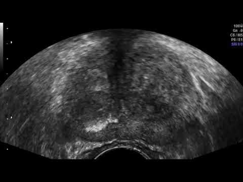 Gonfiore della ghiandola prostatica sintomi di trattamento