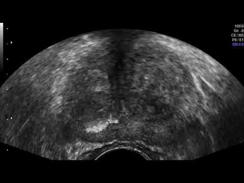 intervento alla prostata stanley youtube