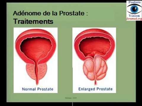 Dans le traitement de linflammation de la prostate