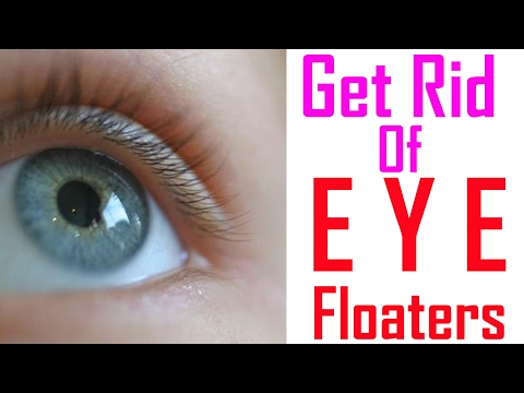Video 13 WAYS TO GET RID OF EYES Floaters   How To Get Rid Of Eye Floaters