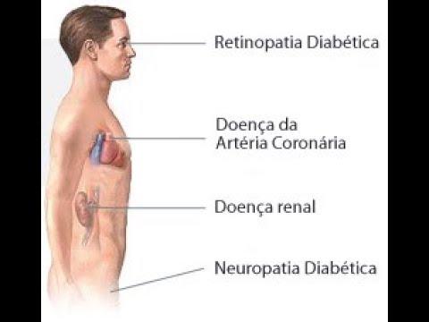 NCD de tipo e tratamento anti-hipertensivo