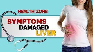 6 Signs of Liver Damage - Symptoms of a Damaged Liver!