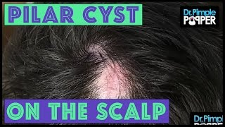 Another One: Three Pilar Cysts Removed
