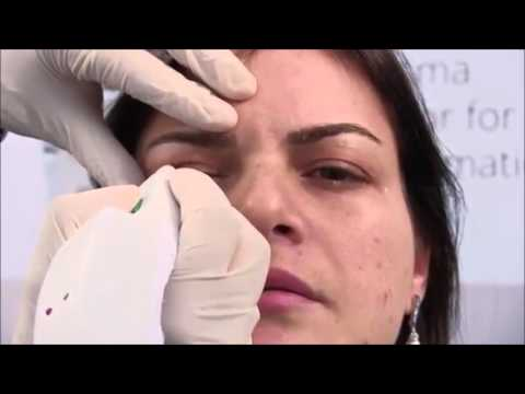 Plexr- revolutionary baggy eyelid removal- without surgery!