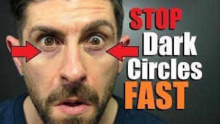 10 Tricks To FIX Dark Under Eye Circles FAST!