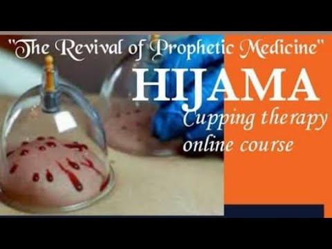 Cupping / hijama Workshop - YouTube