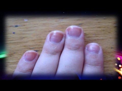 Del hongo sobre las uñas de los pies en ukraine