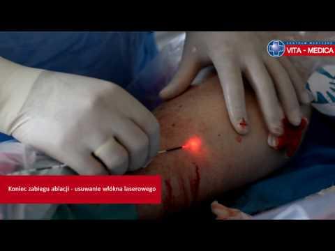 La phlébite des membres inférieurs lanalyse du sang