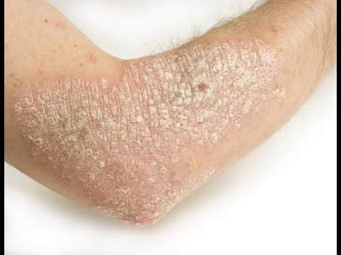 โรคผิวหนังภูมิแพ้เกิดจากการแพ้กลูเต
