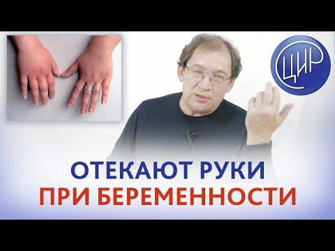 Отёк рук при беременности на 36 неделе. Затекают руки во время сна - это норма или пора к врачу?