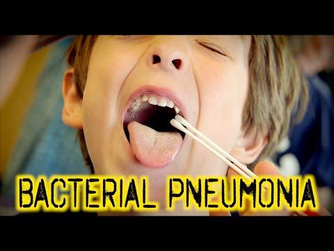 Video BACTERIAL PNEUMONIA: Diagnosis & Treatment | Dr. Paul