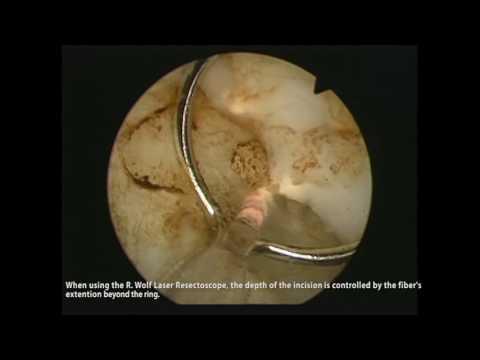Behandlung diffus fokale Veränderungen der Prostata