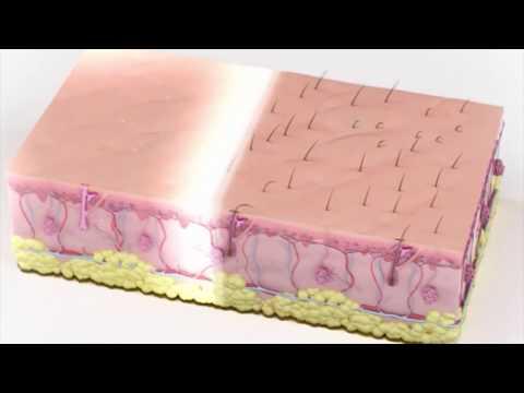 Применение лазеров в косметологии. CO2, Диодные, Неодимовые лазеры.