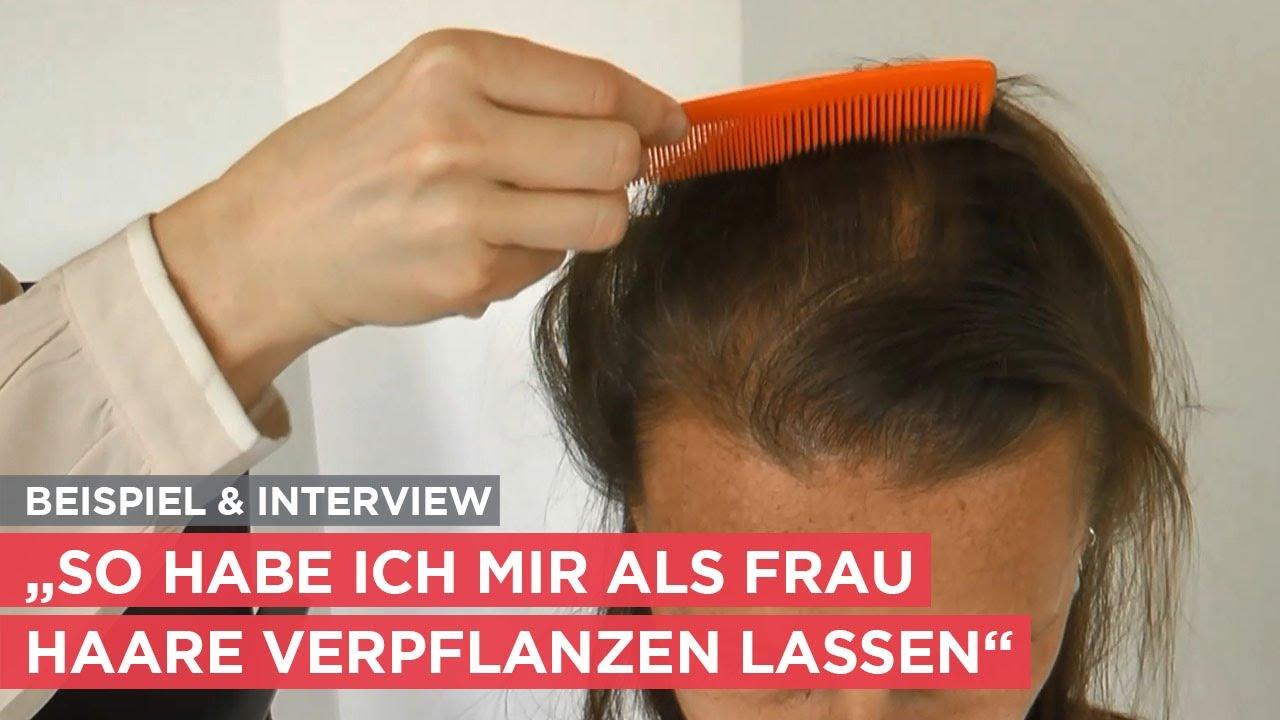 Frau spricht über ihre Haartransplantation