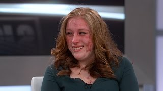 Life-Changing Surprises for Teen Suffering from Painful Skin Condition