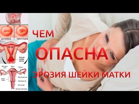 Волжский лечение простатита