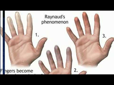Video The best ways to Relieve Hands Pain in Raynaud's Disease Sufferers?