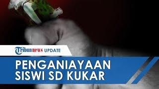 Viral! #JusticeForKayla untuk Anak SD yang Disiksa Saudara Tirinya hingga Lebam
