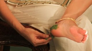 Herbal remedy for cracked heels