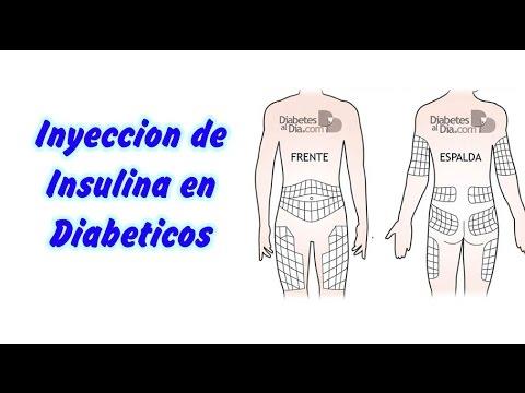 Nefropatía diabética foro de hierbas de tratamiento