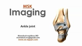 Imaging Of The Ankle Joint -DRE 5 - Prof. Dr. Mamdouh Mahfouz