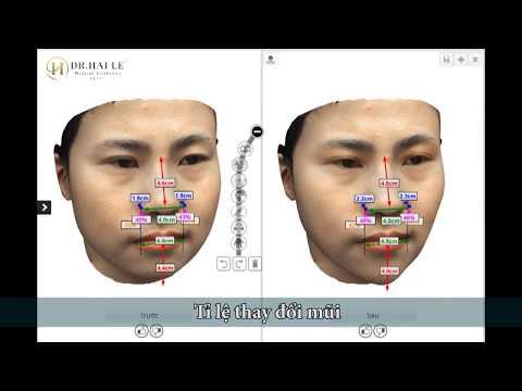 Mô Phỏng 3D Kết Quả Trước Và Sau Phẫu Thuật Thẩm Mỹ Tại Dr.Hải Lê.