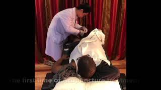 Acupuncture for stroke rehabilitation in South Africa
