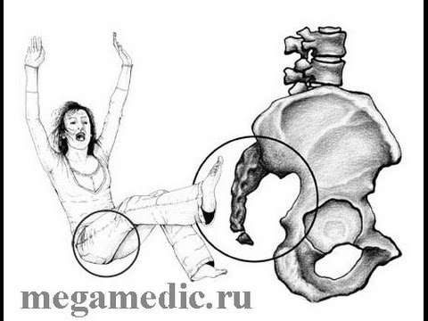 Как лечить алмагом артроз коленного сустава