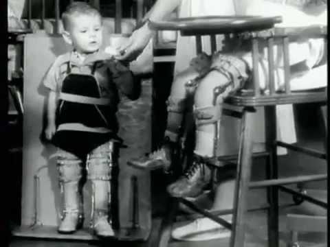 Guzki na nogi kciukiem dziecka