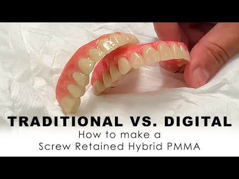 Traditional Vs. Digital: How to make Screw Retained Hybrid PMMA