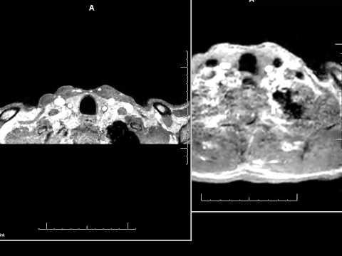 Angiografia rezonansu magnetycznego szyi z podaniem wewnątrznaczyniowego środka kontrastowego - RM
