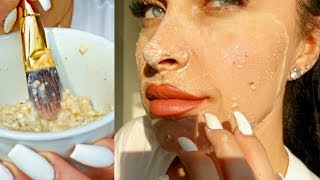 DIY CLEAR SKIN FACE MASK | How To Get Rid of Pimples + Acne Overnight At Home (100% Natural)