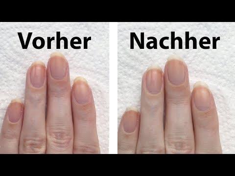 Die Behandlung von gribka der Nagelzwang auf