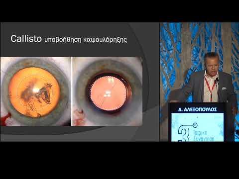 Αλεξόπουλος Δ. - Αντιμετώπιση διαθλαστικών ανωμαλιών με επέμβαση στον κρυσταλλοειδή φακό