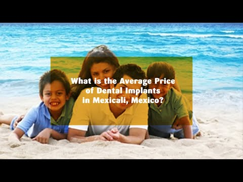 What-is-the-Average-Price-of-Dental-Implants-in-Mexicali-Mexico