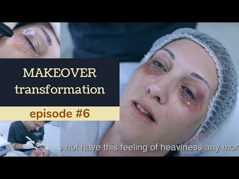 Plasma eye lift, Plexr. Grow up but don't get old makeover №6 ENG