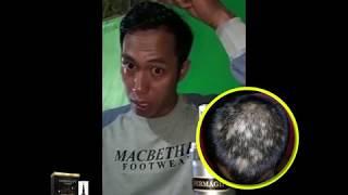 Dermagift Hair Serum Redensyl Penumbuh Rambut Alami Cepat dan Bebas Rambut Rontok Paket Platinum