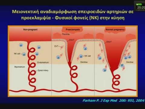 Υπέρταση 1 βαθμός αρχική διάγνωση