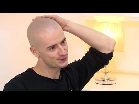 Żółtko maska kefir włosy