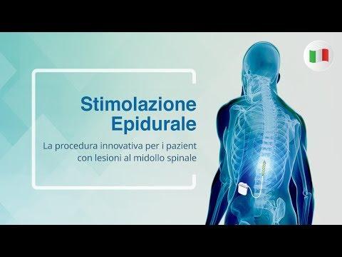 Sinistra sintomi mal di schiena