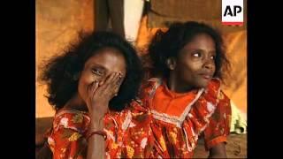 INDIA: SIAMESE TWINS ARE A PROFIT MAKING ENTERPRISE