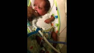 Trach Baby tricking his dad