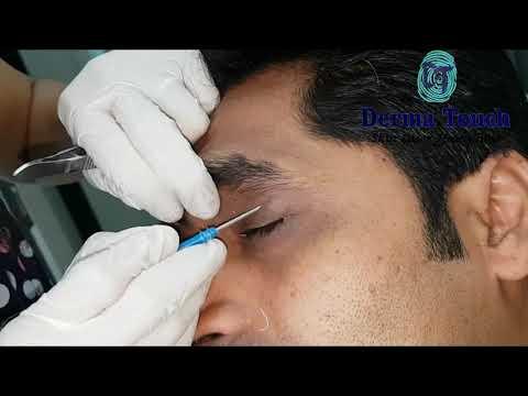 A genitális szemölcsök elektrokoagulációja mi